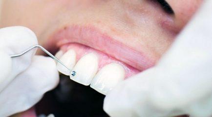 Najboljši ortodont v Mariboru